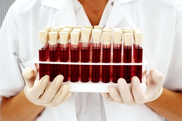 взаимосвязь между эмоциями и гормональным составом крови